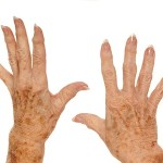 two hands with freckles and age spotting