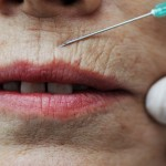 Solutions for Smoker's Lines and Wrinkles Around Lips