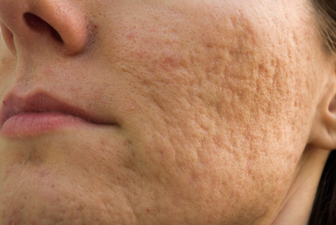 pictuer of acne damage to side of face