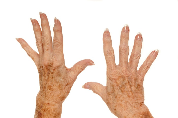 The Aging Hand