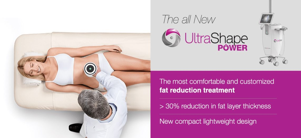ultrashape procedure