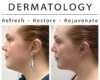 before and after of woman neck kybella tightening procedure