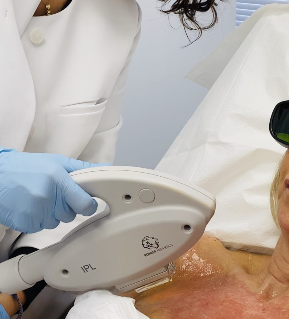 CAN IPL HELP ME PREP FOR SUMMER? Let's reverse sun damage and get clearer skin!