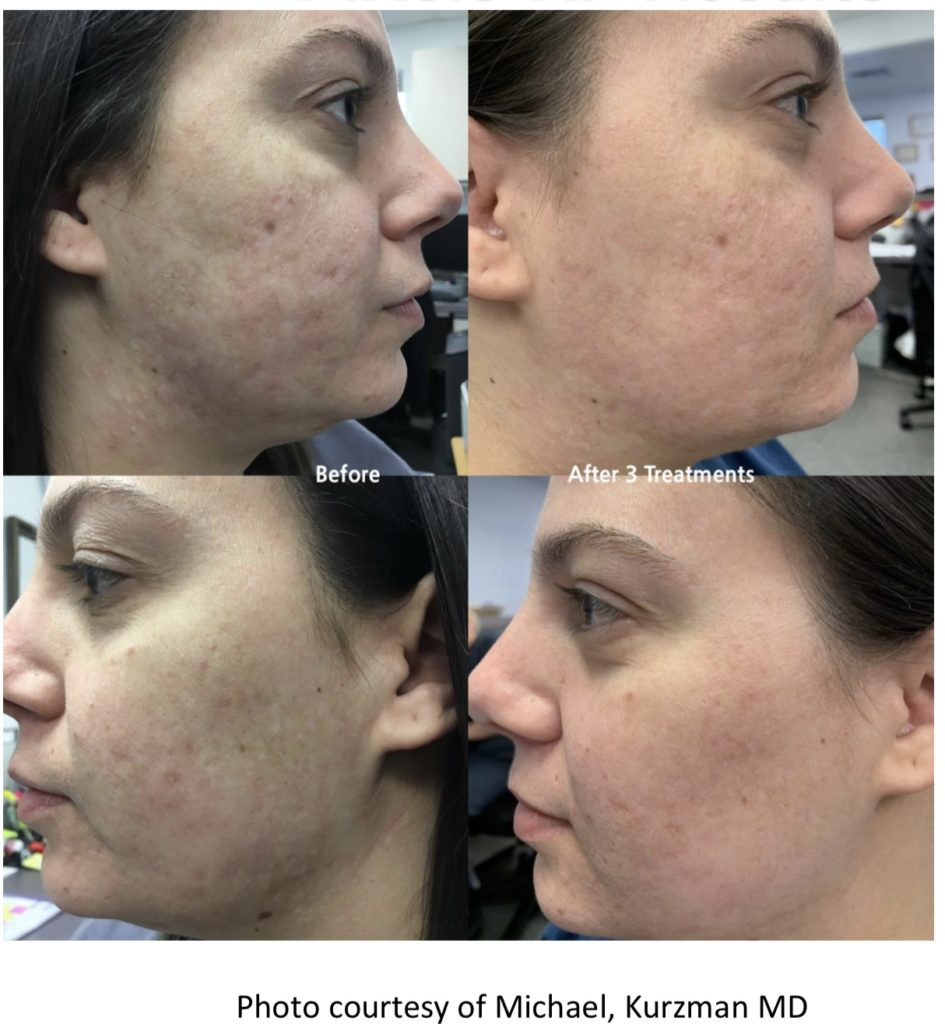 Before and After photo of woman side profile neck and face resurfacing
