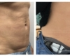before and after of woman waist exilis procedure