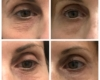 before and after of woman eyes tightening procedure