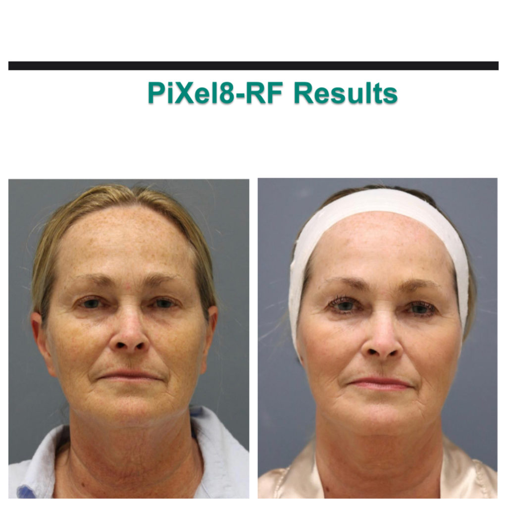 Before and After photo of woman face resurfacing