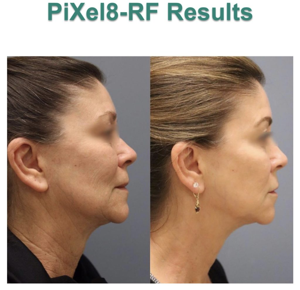 Before and After photo of woman side profile neck